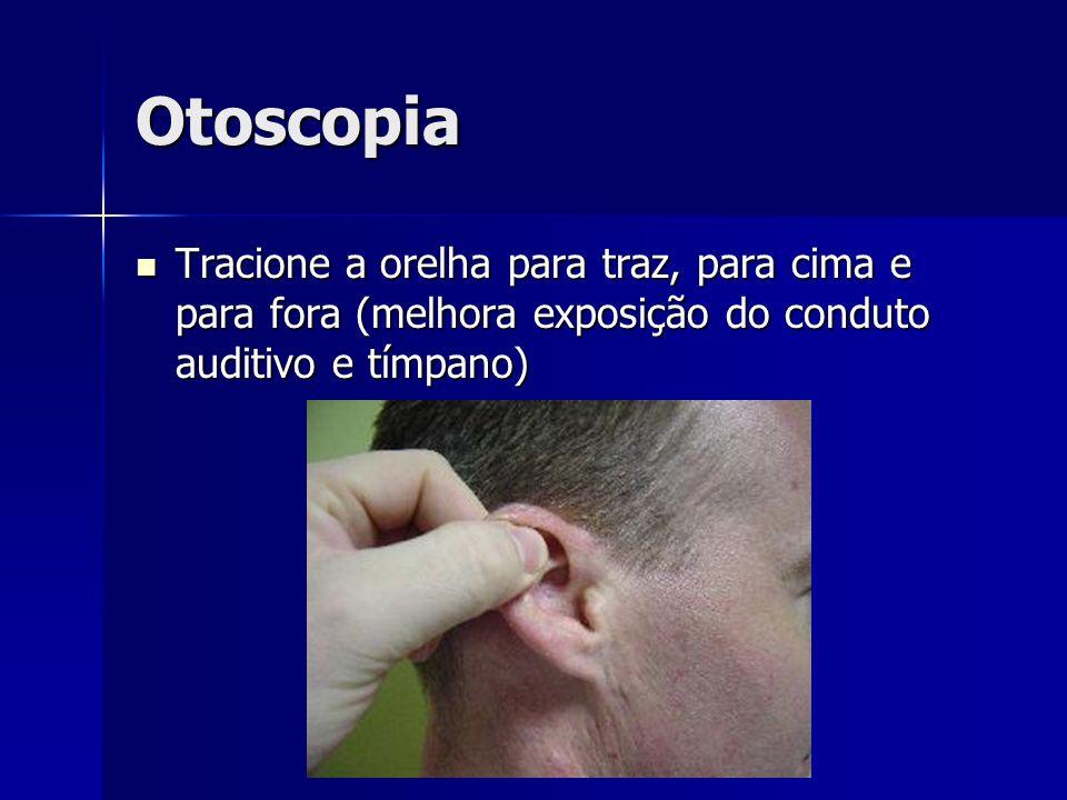 Otoscopia Tracione a orelha para traz, para cima e para fora (melhora exposição do conduto auditivo e tímpano) Tracione a orelha para traz, para cima e para fora (melhora exposição do conduto auditivo e tímpano)