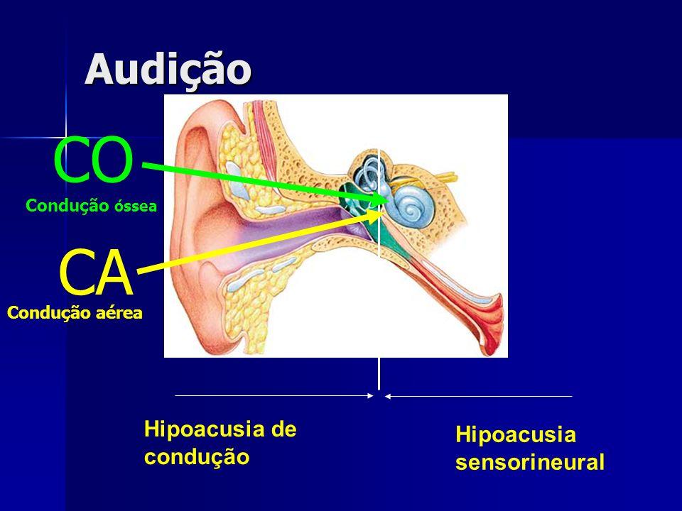 Audição Hipoacusia de condução Hipoacusia sensorineural CA CO Condução óssea Condução aérea