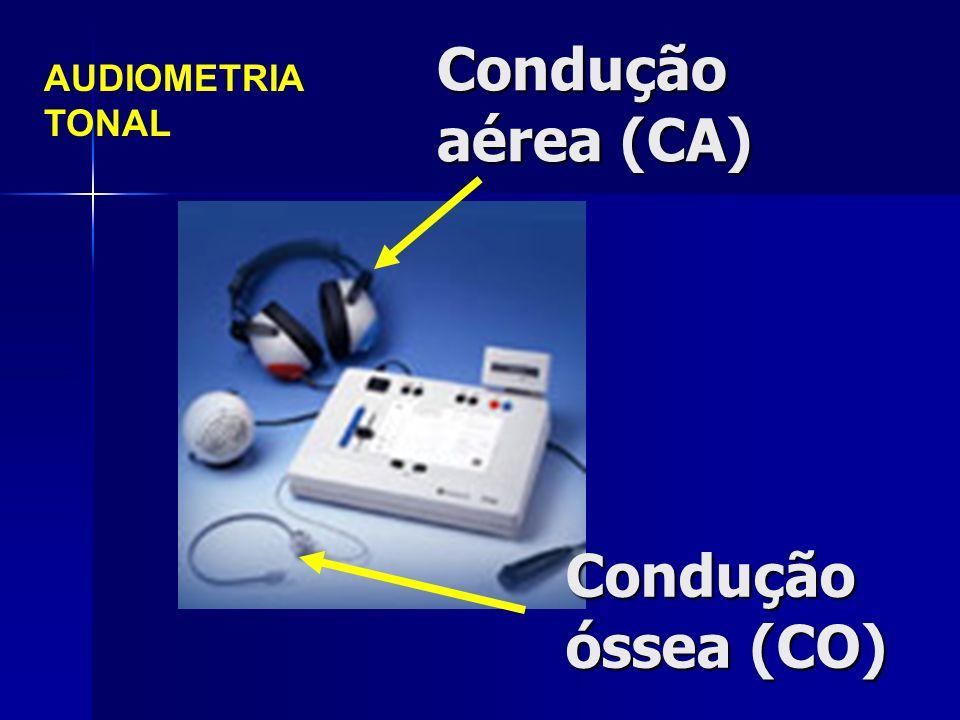 Condução aérea (CA) Condução óssea (CO) AUDIOMETRIA TONAL