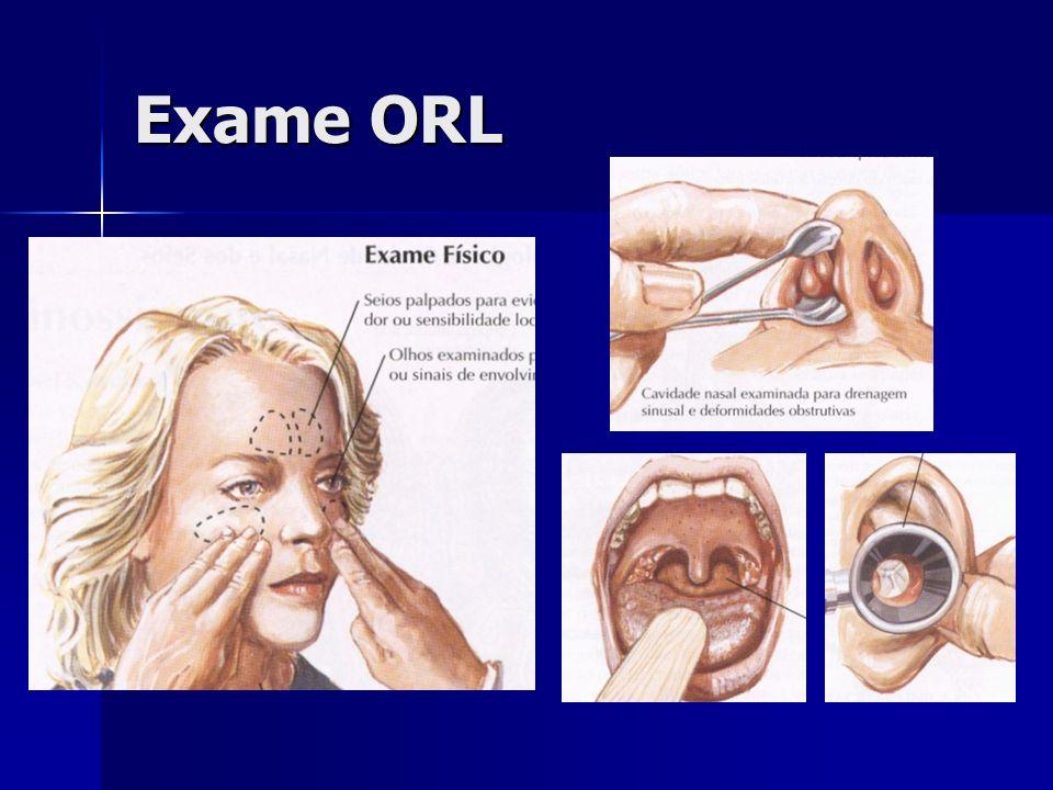 ORL examina cavidades com iluminação e visão binocular ORL examina cavidades com iluminação e visão binocular Aprenda a usar o Espelho Frontal Aprenda a usar o Espelho Frontal