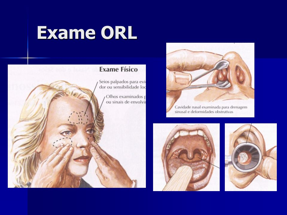 Diâmetros: Hor = 9,6-10,2mm Ver = 8,5-9,0mm OD Martelo Triângulo luminoso Pars flacida Ânulo CAE Imagem vista no otoscópio Otoscopia normal Pars tensa