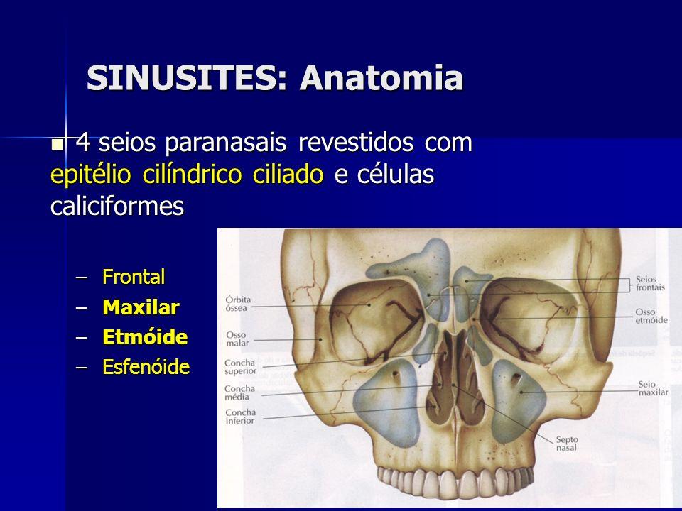 SINUSITES: Anatomia 4 seios paranasais revestidos com epitélio cilíndrico ciliado e células caliciformes 4 seios paranasais revestidos com epitélio ci