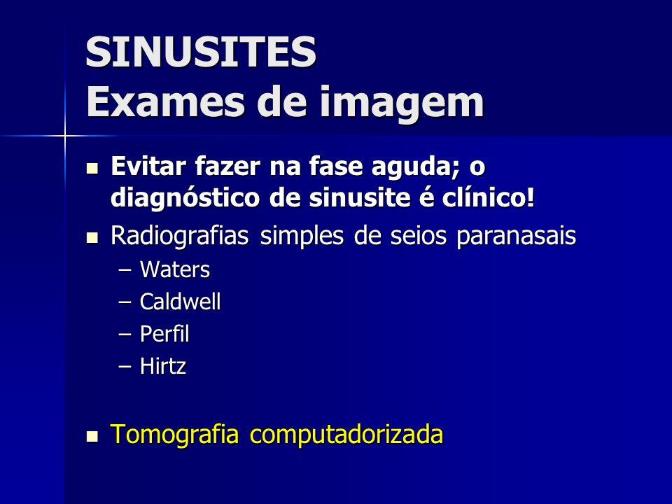 SINUSITES Exames de imagem Evitar fazer na fase aguda; o diagnóstico de sinusite é clínico! Evitar fazer na fase aguda; o diagnóstico de sinusite é cl