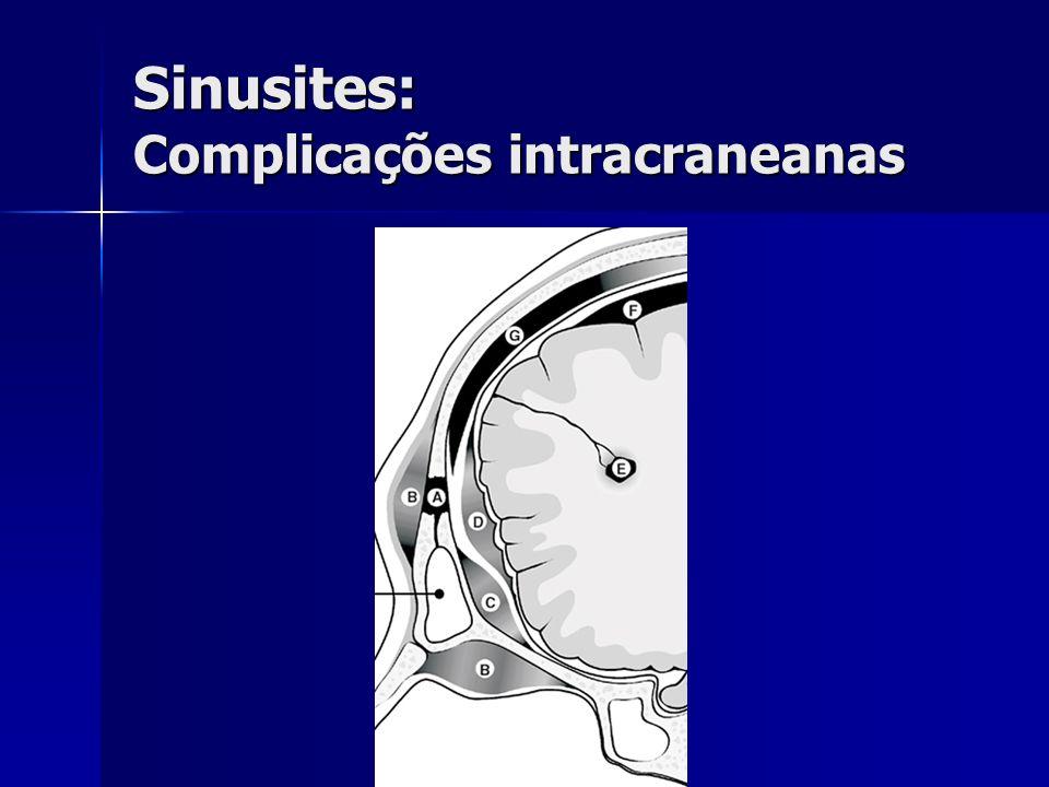 Sinusites: Complicações intracraneanas