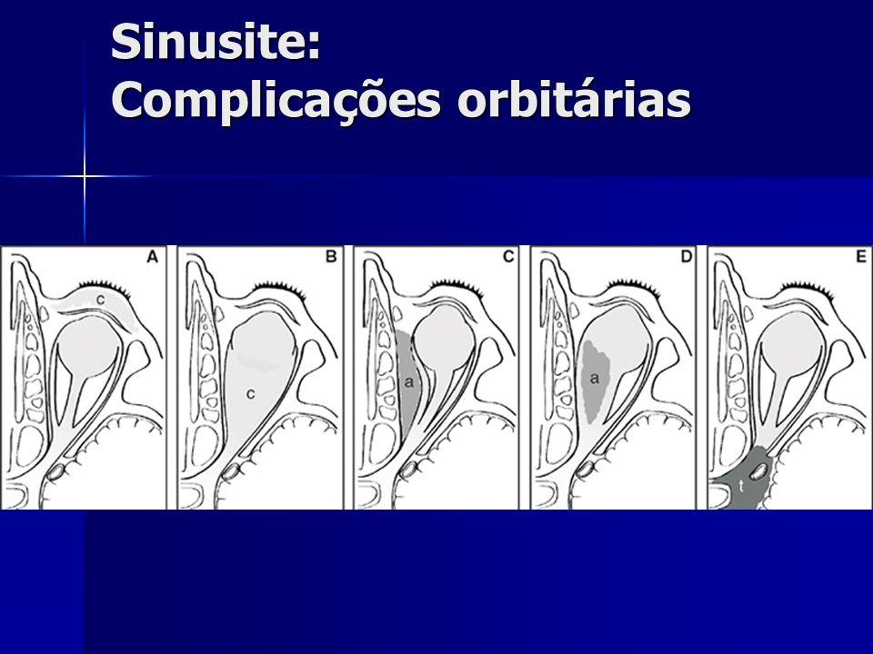 Sinusite: Complicações orbitárias