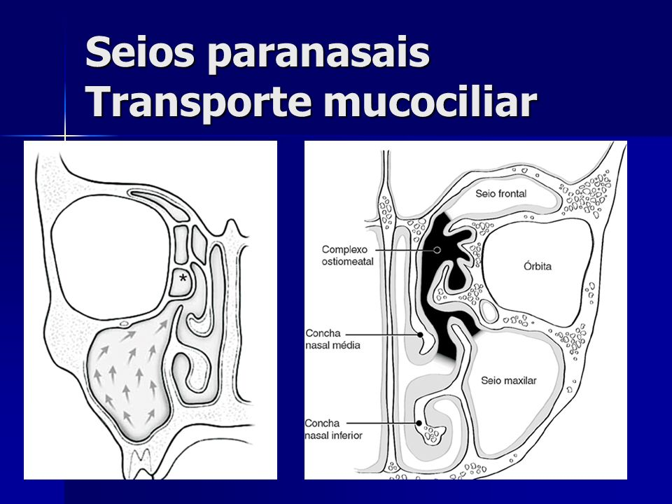Fisiopatologia Fatores anatômicos BLOQUEIO DO ÓSTIO-> MÁ VENTILAÇÃO DO SEIO PARANASAL-> SINUSITE
