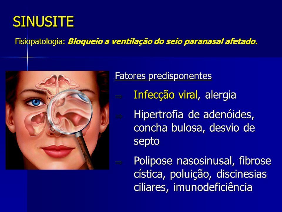Bloqueio óstio-meatal CTSF normal CTSF com sinusite maxilo-etmoidal