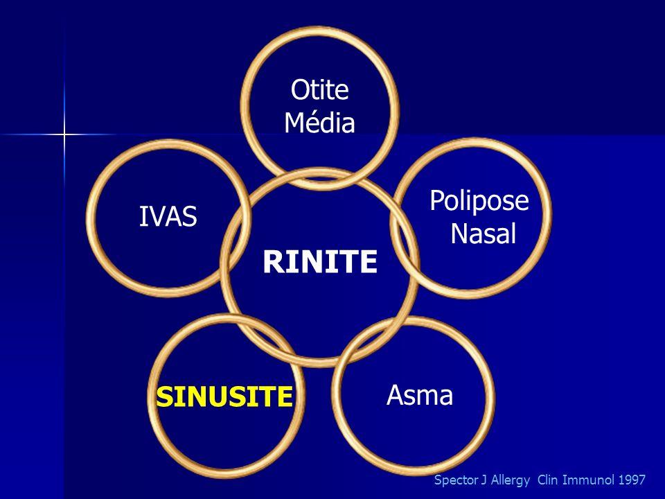 SINUSITES Exames de imagem Evitar fazer na fase aguda; o diagnóstico de sinusite é clínico.