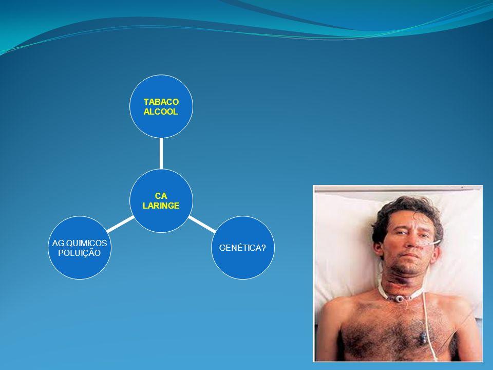 Tu de laringe Tratamento – Estágios III/IV 1) Quimioterapia 2) Radioterapia x Laringectomia total 3) Laringectomia total ou Radioterapia posop Department of Veterans Affairs Laryngeal Cancer Study Group, N Engl J Med 1991;324:1685-90.