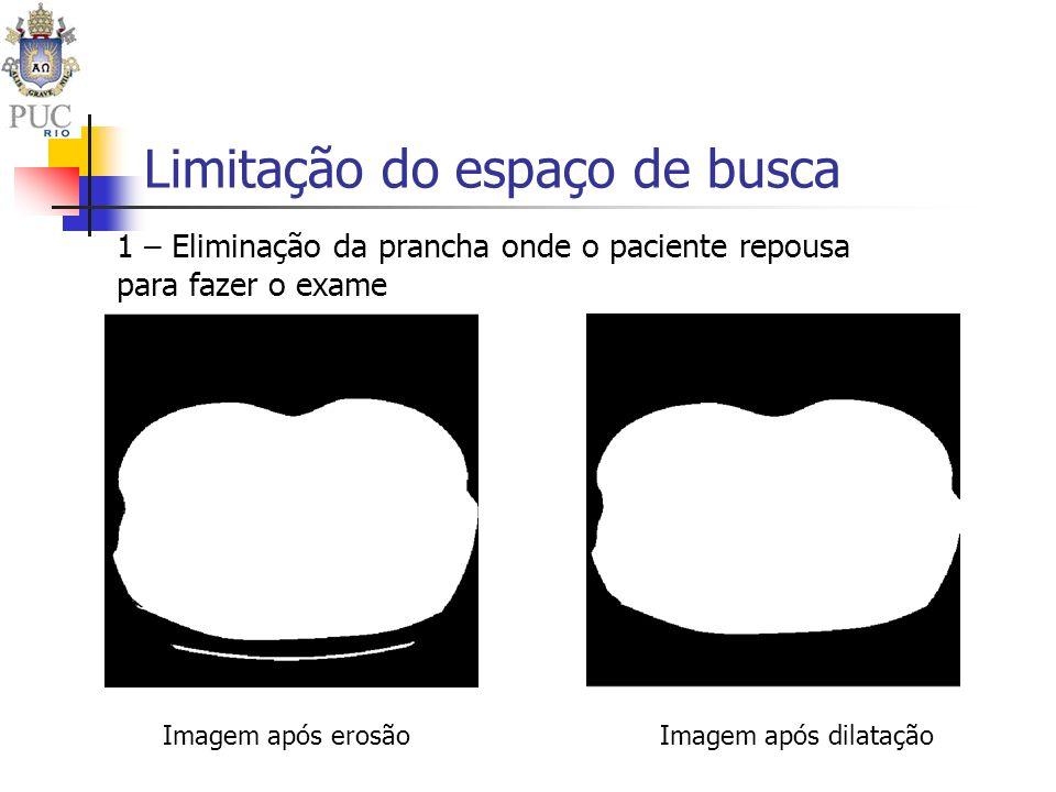 Limitação do espaço de busca 1 – Eliminação da prancha onde o paciente repousa para fazer o exame Imagem após erosãoImagem após dilatação