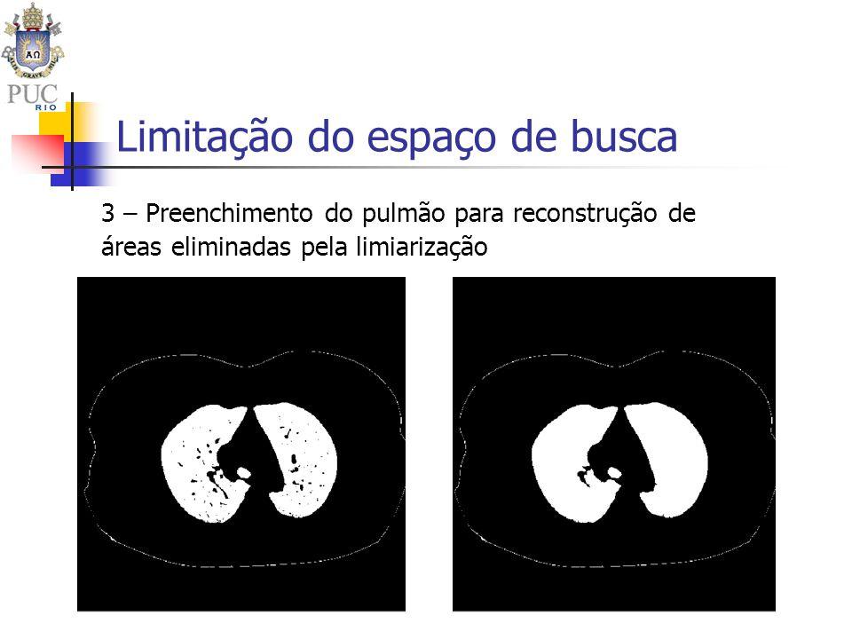 Limitação do espaço de busca 3 – Preenchimento do pulmão para reconstrução de áreas eliminadas pela limiarização