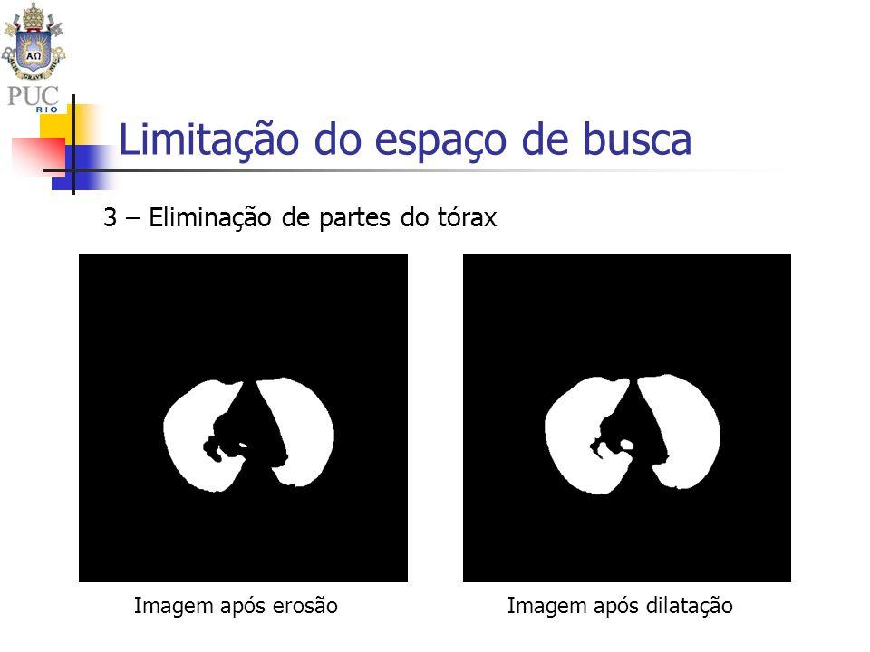 Limitação do espaço de busca 3 – Eliminação de partes do tórax Imagem após erosãoImagem após dilatação