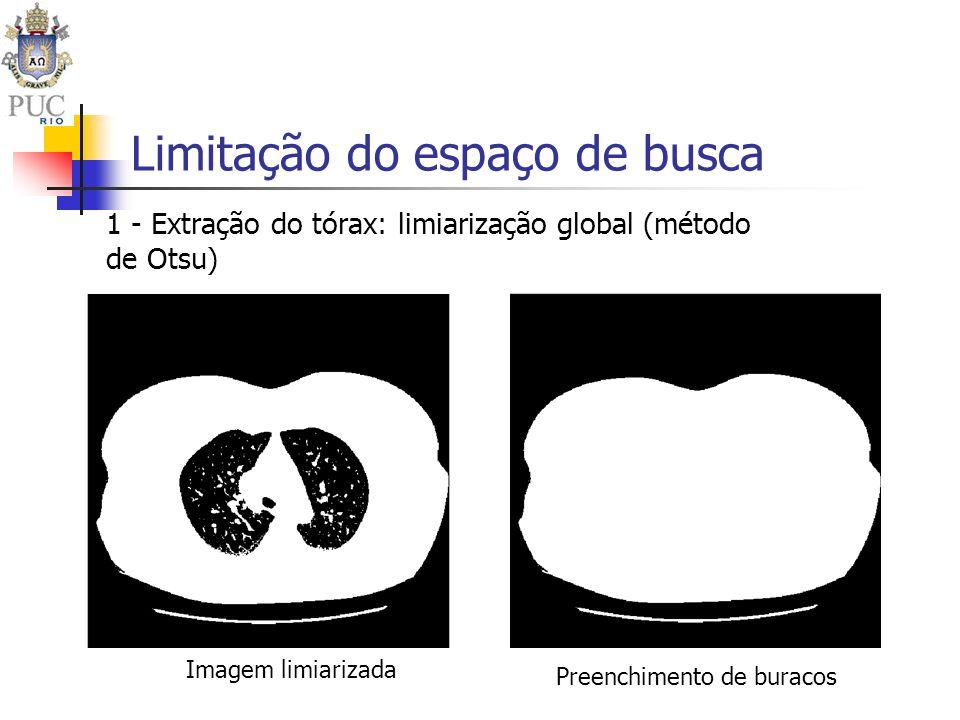 Limitação do espaço de busca Imagem limiarizada Preenchimento de buracos 1 - Extração do tórax: limiarização global (método de Otsu)