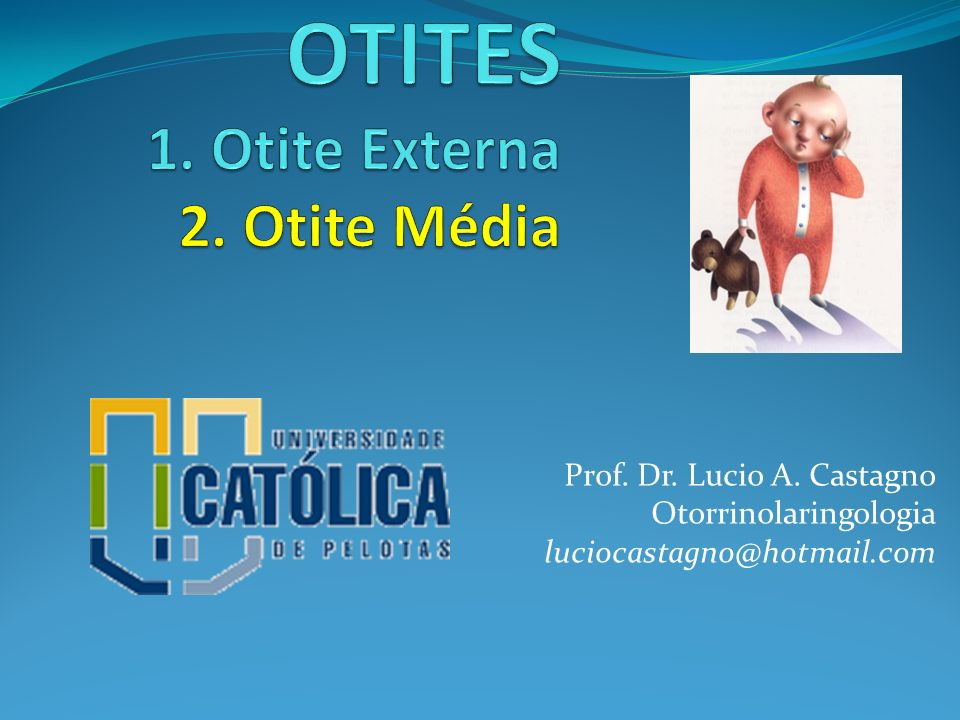 OMC: Tratamento clínico Ciprofloxacino 500 mg q12h 14 d (Proflox) Ciprofloxacino otológico 4 gts q8-12h 14-20 d (Otociriax) Ceftriaxona 1g IM 3 dias .