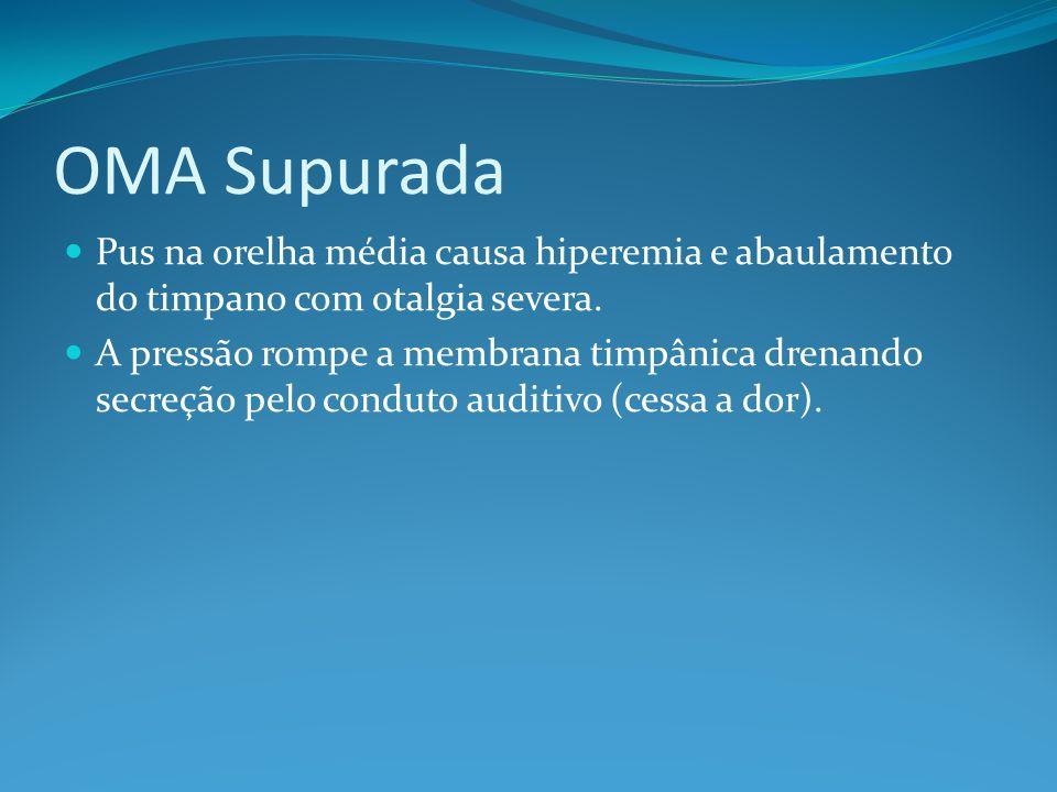 OMA Supurada Pus na orelha média causa hiperemia e abaulamento do timpano com otalgia severa.