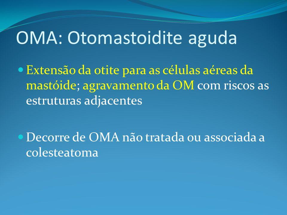 OMA: Otomastoidite aguda Extensão da otite para as células aéreas da mastóide; agravamento da OM com riscos as estruturas adjacentes Decorre de OMA não tratada ou associada a colesteatoma