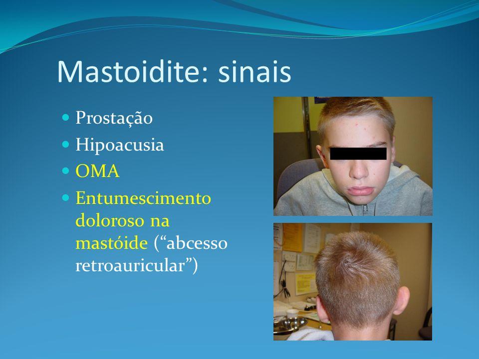Mastoidite: sinais Prostação Hipoacusia OMA Entumescimento doloroso na mastóide (abcesso retroauricular)