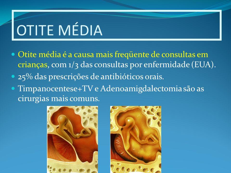 Patogênia da otite média Causa multifatorial.Sucessão de eventos.