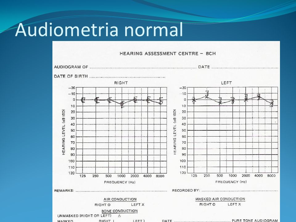 Audiometria normal