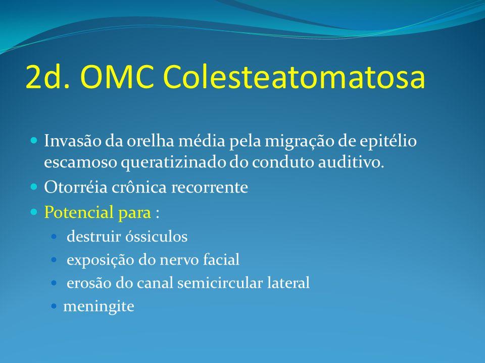 2d. OMC Colesteatomatosa Invasão da orelha média pela migração de epitélio escamoso queratizinado do conduto auditivo. Otorréia crônica recorrente Pot