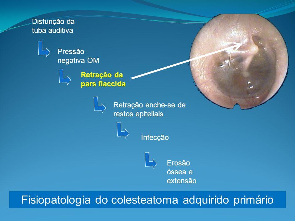Disfunção da tuba auditiva Pressão negativa OM Retração da pars flaccida Retração enche-se de restos epiteliais Infecção Erosão óssea e extensão Fisiopatologia do colesteatoma adquirido primário