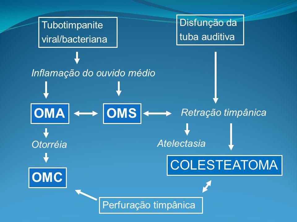 Perfuração timpânica OMC OMA Otorréia Tubotimpanite viral/bacteriana Disfunção da tuba auditiva Retração timpânica Atelectasia COLESTEATOMA OMS Inflamação do ouvido médio