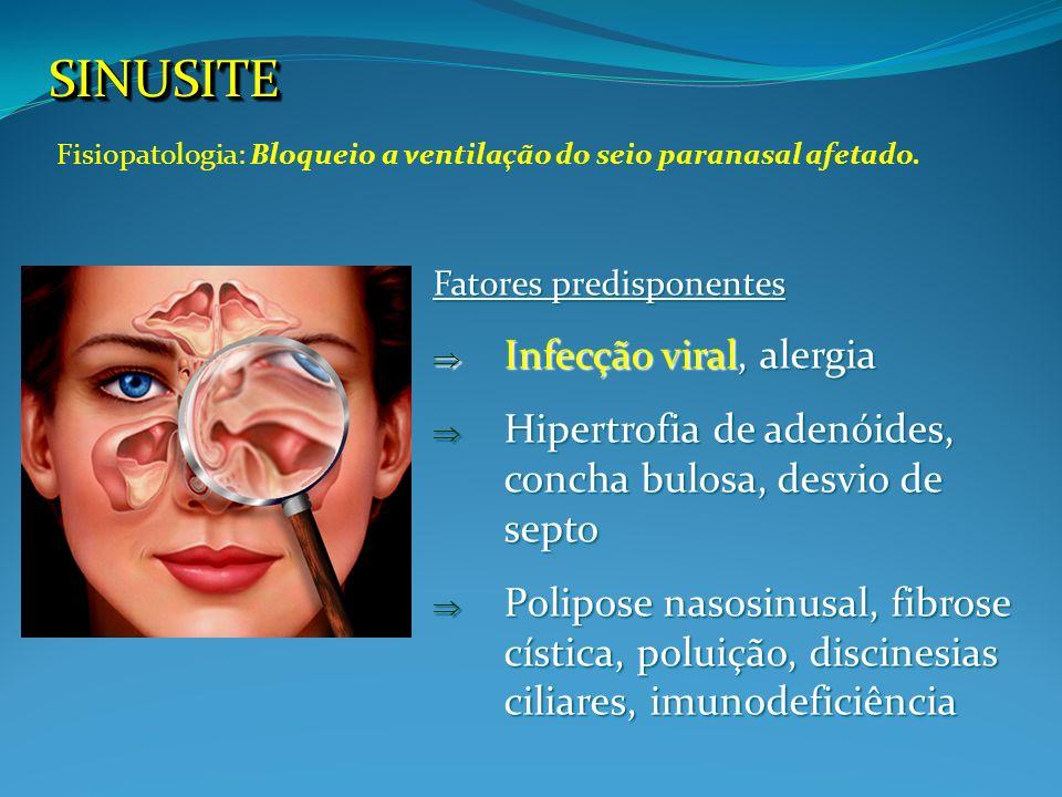 SINUSITESINUSITE Fatores predisponentes Infecção viral, alergia Infecção viral, alergia Hipertrofia de adenóides, concha bulosa, desvio de septo Hiper