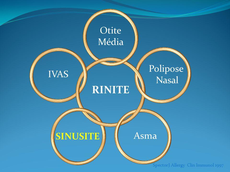Spector J Allergy Clin Immunol 1997 IVAS Otite Média Polipose Nasal SINUSITE Asma RINITE