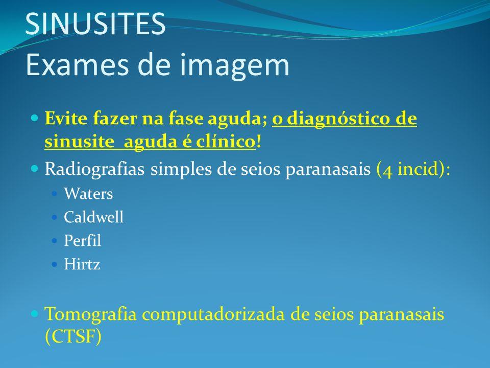 SINUSITES Exames de imagem Evite fazer na fase aguda; o diagnóstico de sinusite aguda é clínico! Radiografias simples de seios paranasais (4 incid): W