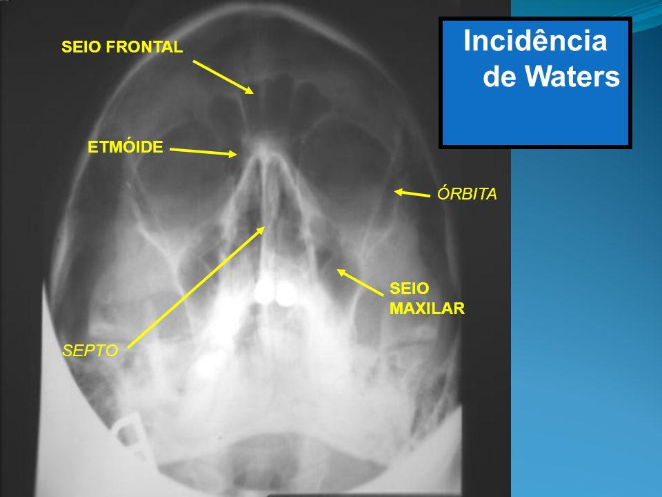 Incidência de Waters SEIO FRONTAL ETMÓIDE SEIO MAXILAR SEPTO ÓRBITA