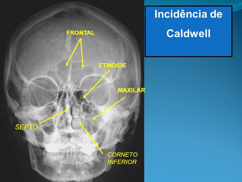 Incidência de Caldwell FRONTAL SEPTO ETMÓIDE MAXILAR CORNETO INFERIOR