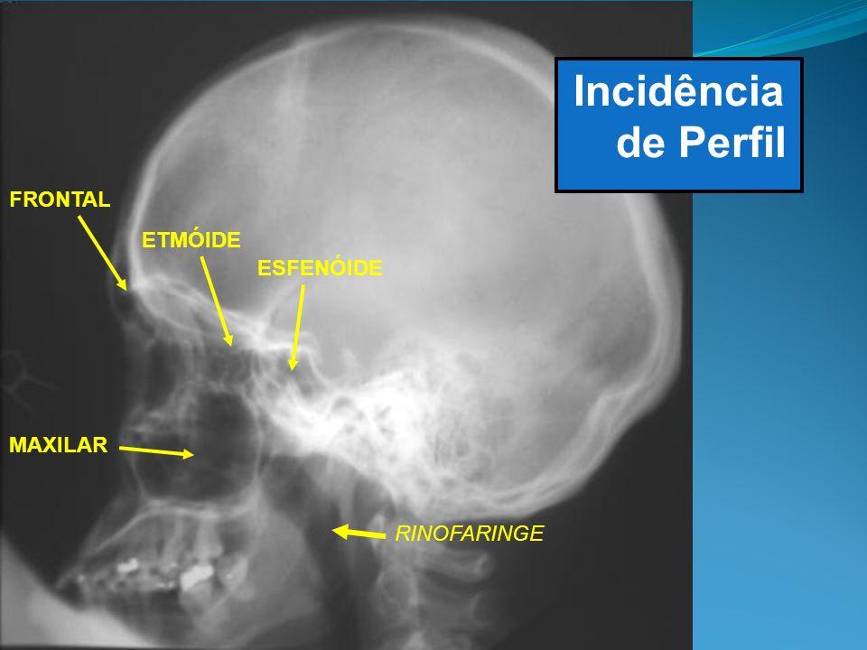 Incidência de Perfil FRONTAL MAXILAR ETMÓIDE ESFENÓIDE RINOFARINGE
