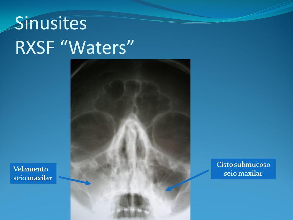 Sinusites RXSF Waters Velamento seio maxilar Cisto submucoso seio maxilar