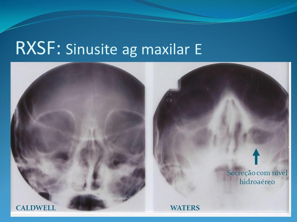 RXSF: Sinusite ag maxilar E WATERSCALDWELL Secreção com nível hidroaéreo