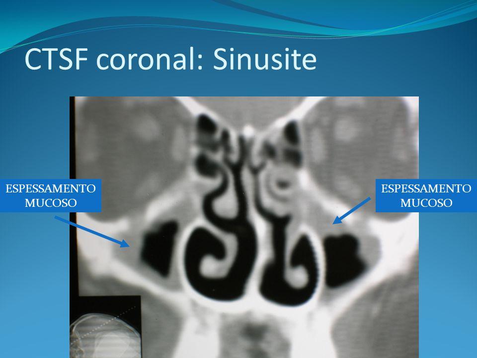 CTSF coronal: Sinusite ESPESSAMENTO MUCOSO