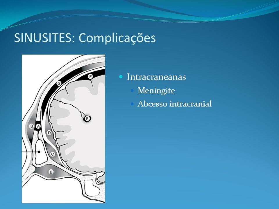 SINUSITES: Complicações Intracraneanas Meningite Abcesso intracranial