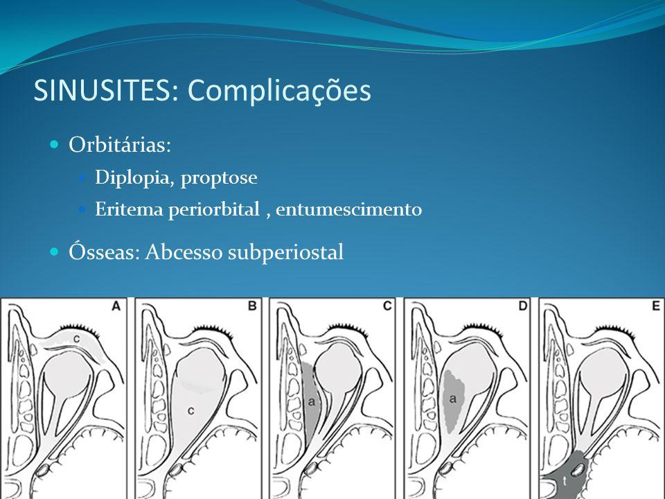 SINUSITES: Complicações Orbitárias: Diplopia, proptose Eritema periorbital, entumescimento Ósseas: Abcesso subperiostal