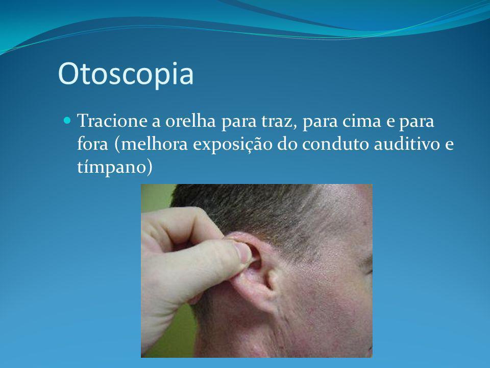 Otoscopia Tracione a orelha para traz, para cima e para fora (melhora exposição do conduto auditivo e tímpano)