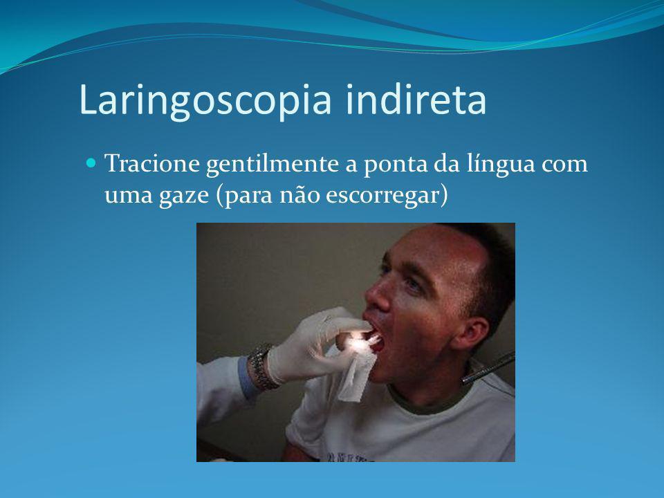 Laringoscopia indireta Tracione gentilmente a ponta da língua com uma gaze (para não escorregar)