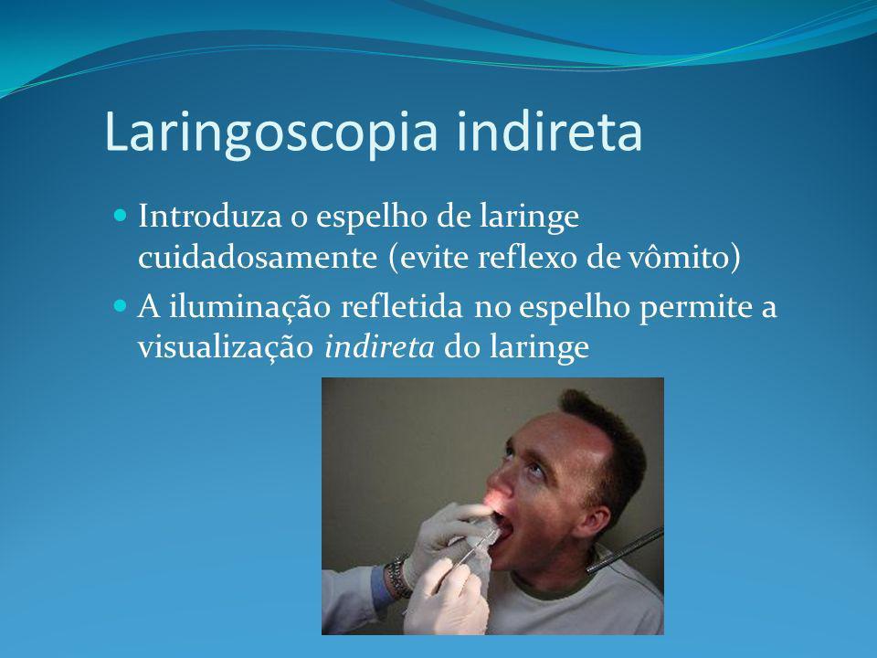 Laringoscopia indireta Introduza o espelho de laringe cuidadosamente (evite reflexo de vômito) A iluminação refletida no espelho permite a visualização indireta do laringe