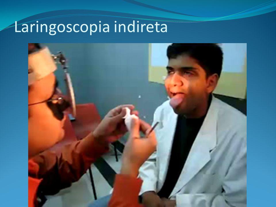 Laringoscopia indireta