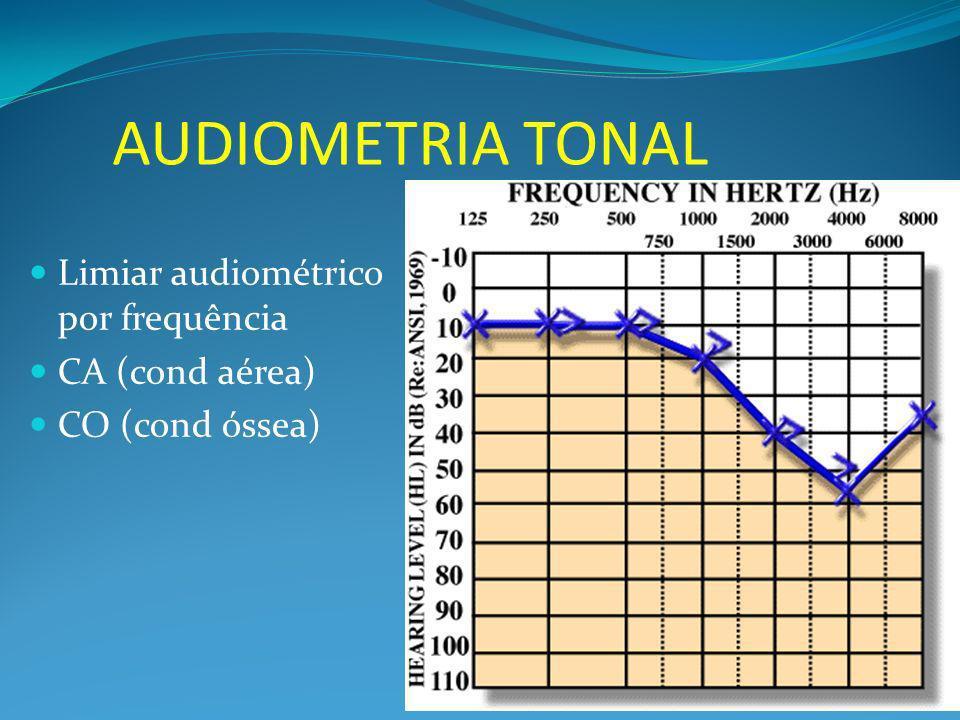 Limiar audiométrico por frequência CA (cond aérea) CO (cond óssea)