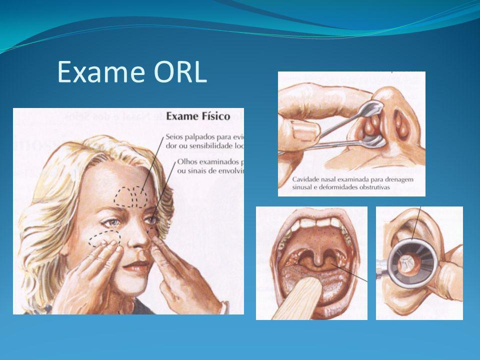 Laringoscopia indireta A imagem do laringe é refletida no espelho no orofaringe; a técnica permite uma visão indireta das pregas vocais.