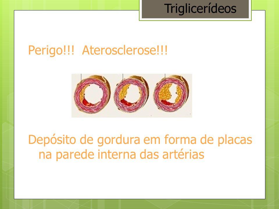 Perigo!!! Aterosclerose!!! Depósito de gordura em forma de placas na parede interna das artérias Triglicerídeos