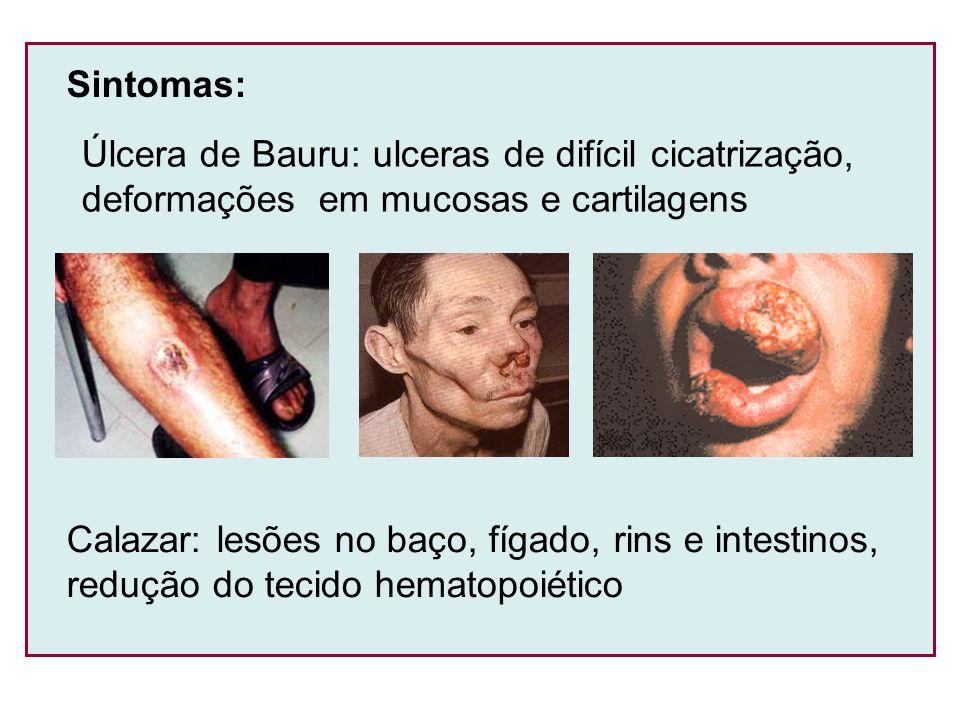 Sintomas: Úlcera de Bauru: ulceras de difícil cicatrização, deformações em mucosas e cartilagens Calazar: lesões no baço, fígado, rins e intestinos, r