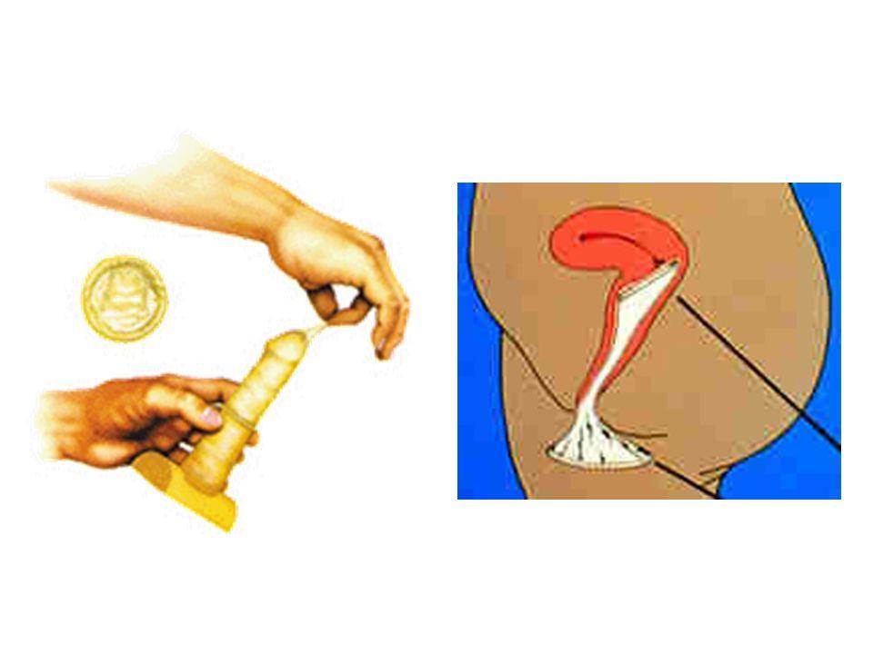 Diafragma Anel flexível coberto com uma membrana de borracha, colocado na vagina para cobrir o colo do útero, impede a entrada dos esperma- tozóides, deve ser usado com espermicida