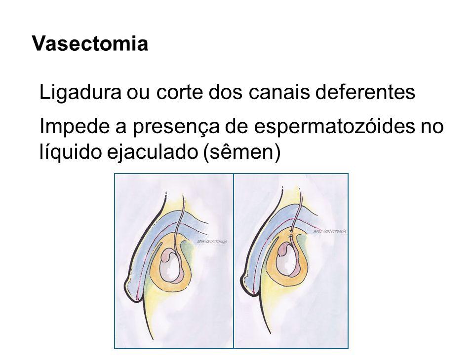 Vasectomia Ligadura ou corte dos canais deferentes Impede a presença de espermatozóides no líquido ejaculado (sêmen)