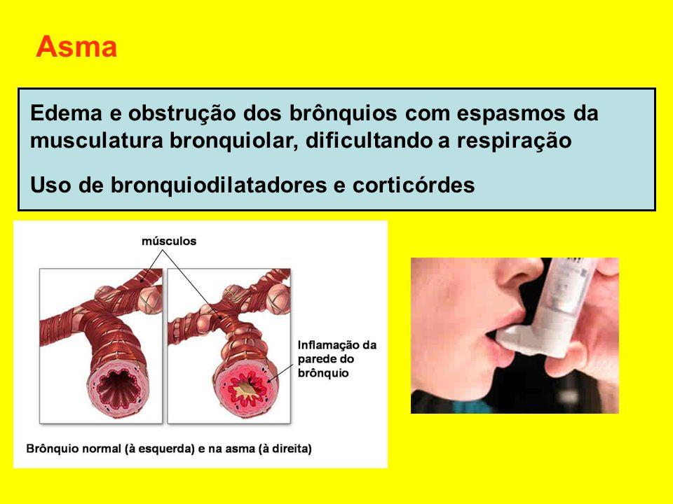 Asma Edema e obstrução dos brônquios com espasmos da musculatura bronquiolar, dificultando a respiração Uso de bronquiodilatadores e corticórdes