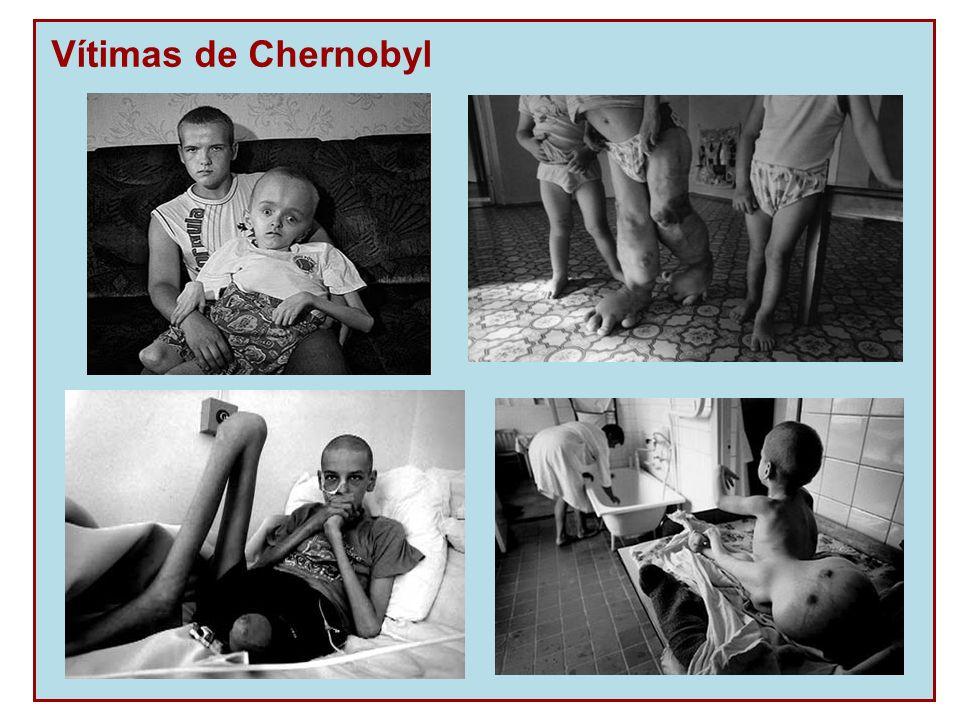 Vítimas de Chernobyl