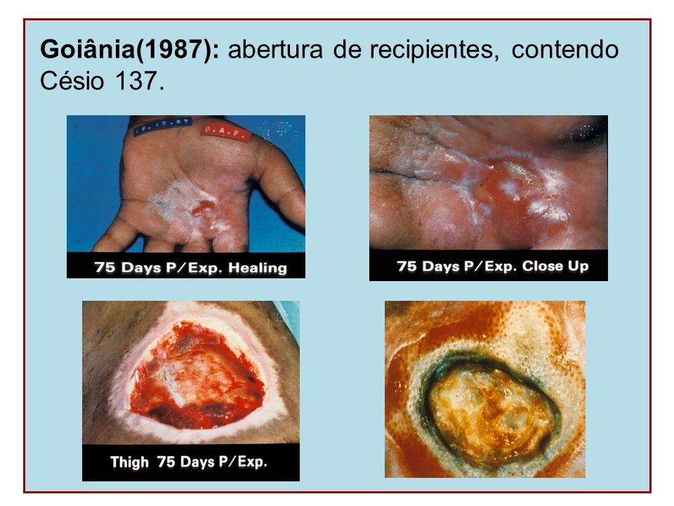 Goiânia(1987): abertura de recipientes, contendo Césio 137.